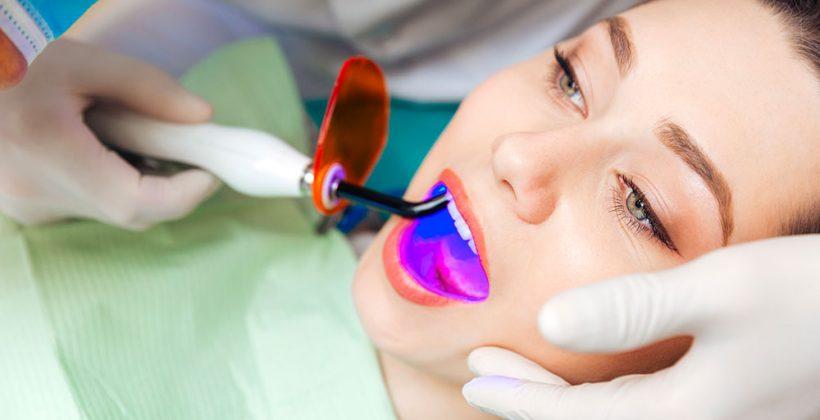 Laser dental bleaching